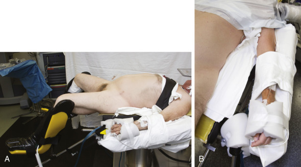 Complications related to the surgical wound and patient positioning